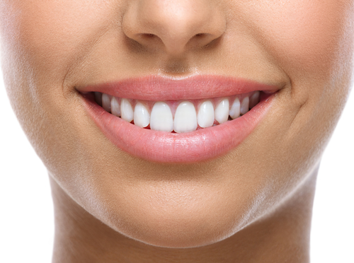 Woman with healthy gums